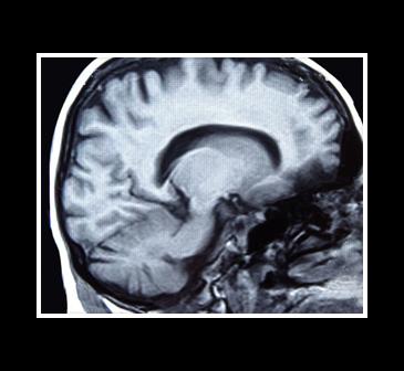 rayos X del cerebro
