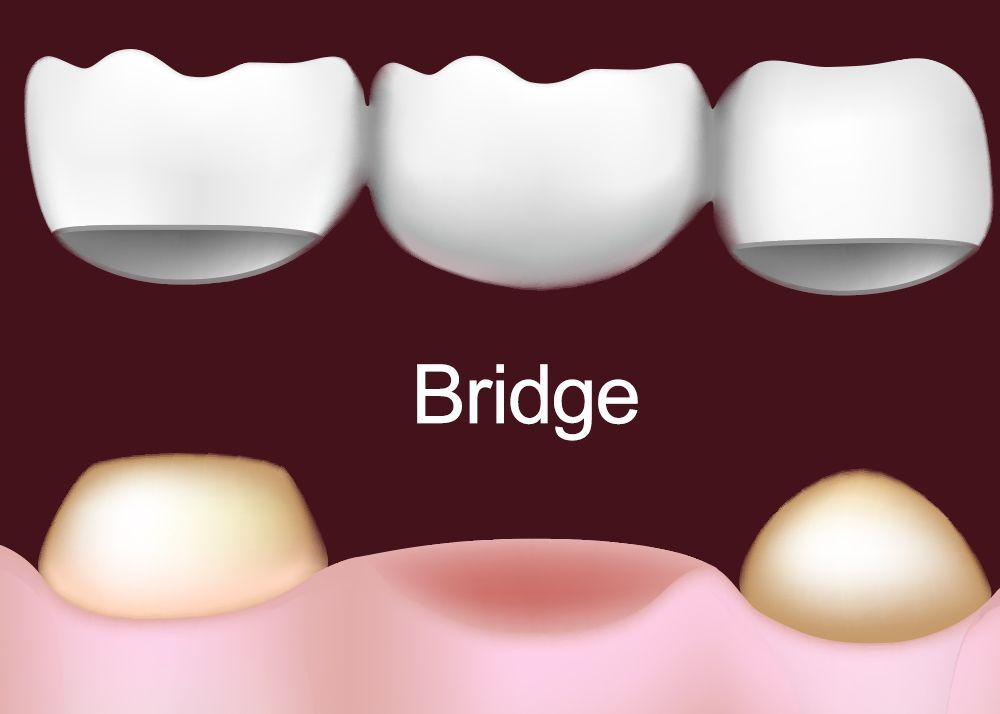 Illustration of how a dental bridge works