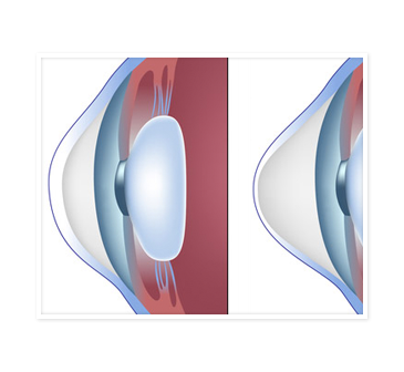 Two diagrams of human eyes