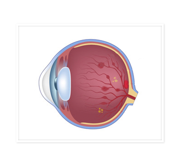 Diagram of human eye