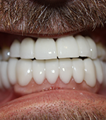 Implants, crowns, bridges, and sos - after