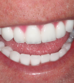 Denture implants - after