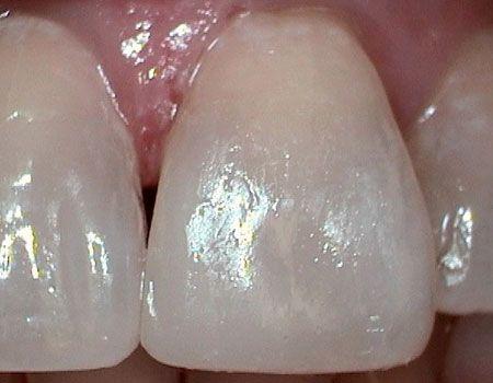 Dental bonding after photo