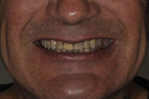 Before Smile makeover photo