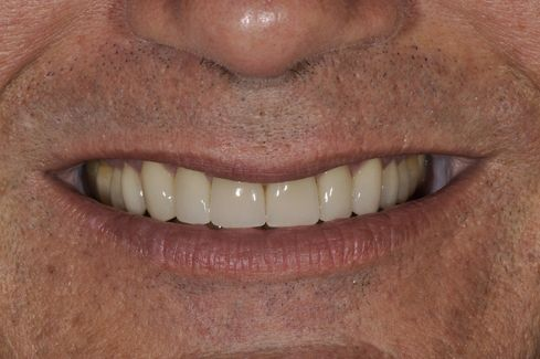 After smile makeover photo