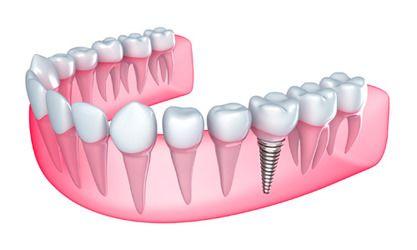 Illustration of embedded dental implant