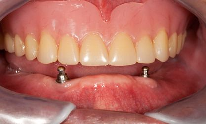 Dental implant posts in patient's gums and dentures