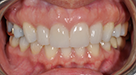 a woman has her smile transformed with the help go porcelain veneers