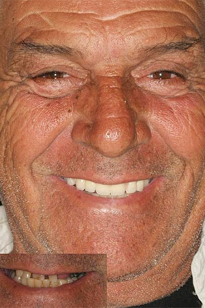 Elderly male with partial dentures