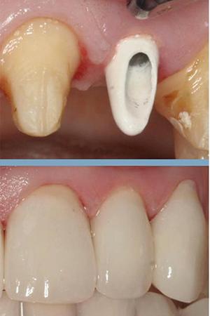 anterior implants