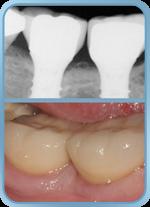 posterior implants