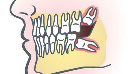 Animation of impacted wisdom teeth