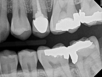 Close up of back teeth