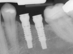 X ray image of dental implants in the jaw