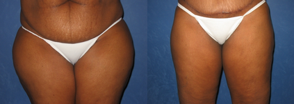Liposuction Columbus OH