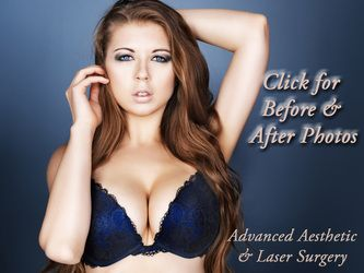 Models with breast implants before and after