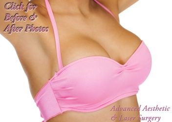 Breast Augmentation in Columbus Ohio