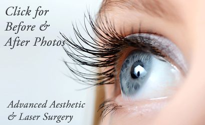 Blepharoplasty in Columbus, Ohio