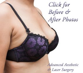 Breast Augmentation in Columbus, OH