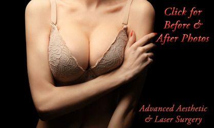 Deflated saline breast can