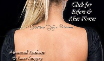 Laser Tattoo Removal FAQs - Columbus, Dublin, Hilliard, Worthington