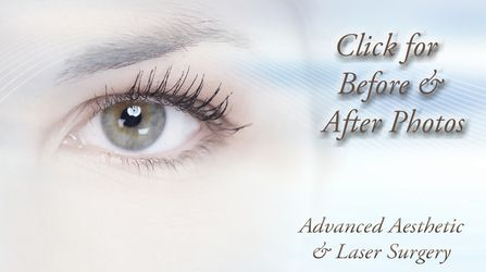 Blepharoplasty in Columbus Ohio
