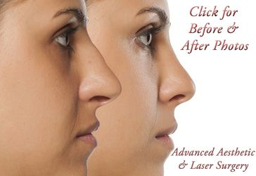 Rhinoplasty - Columbus, Ohio
