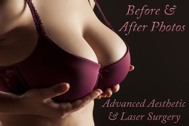 Breast Augmentation Surgery Columbus, Ohio
