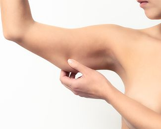 Woman pinching skin on upper arm