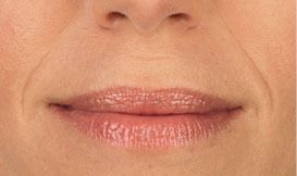 Juvederm Close Before