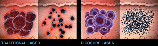 Illustration of traditional laser tattoo removal and Picosure