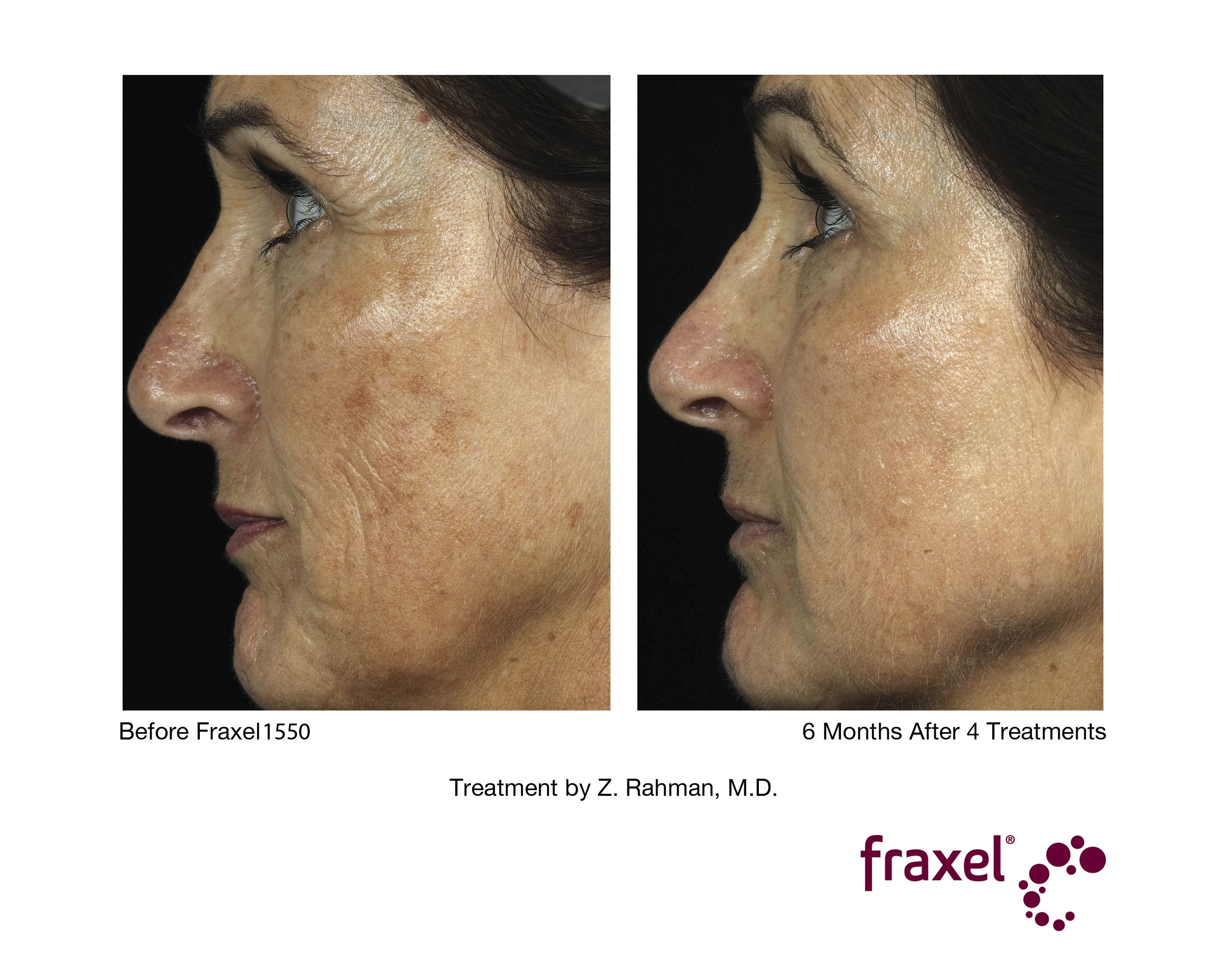 6 Months After 4 Fraxel Treatments