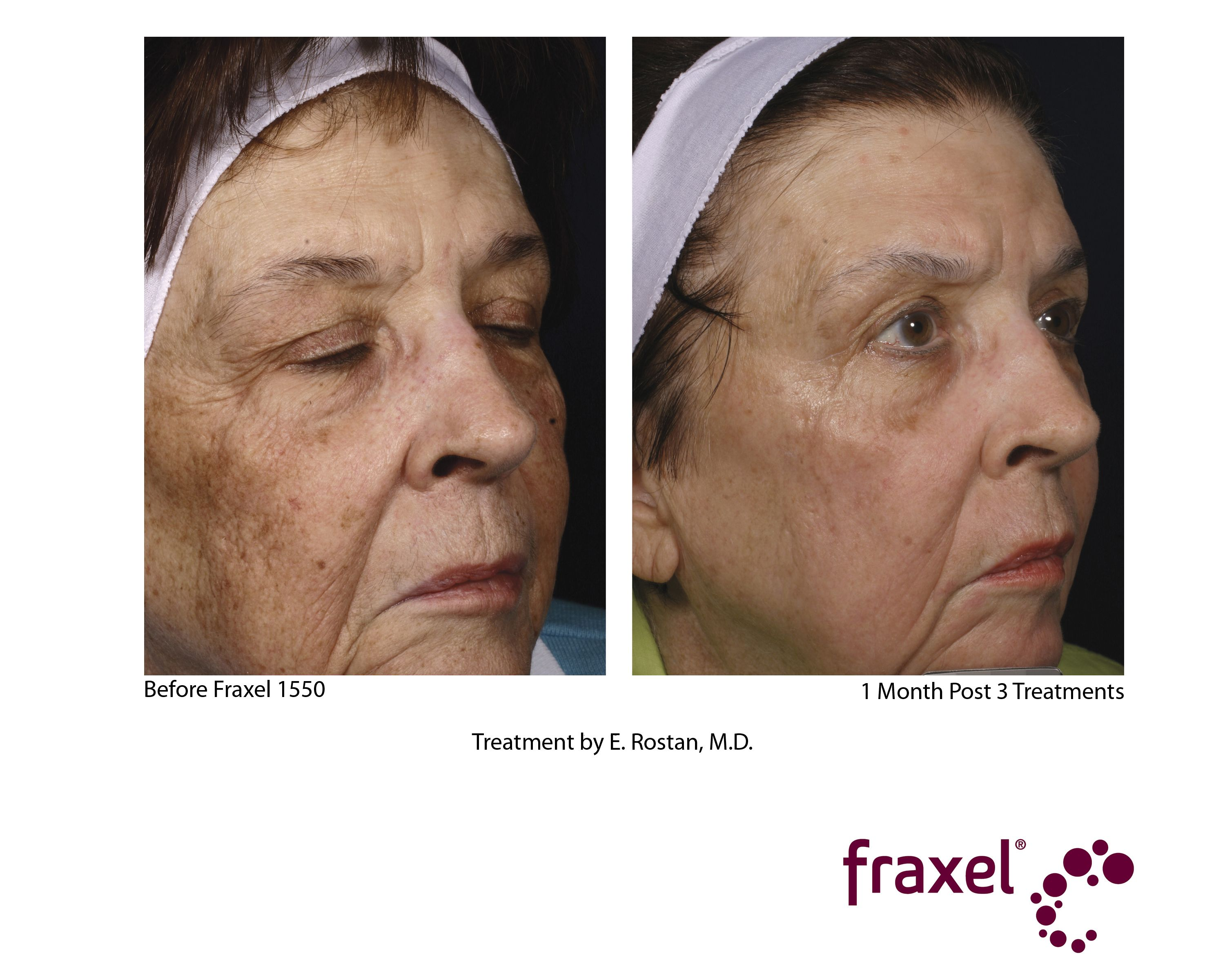 One Month Post 3 Treatments After Fraxel 1550