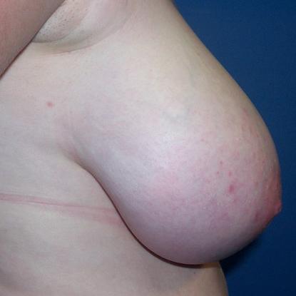 ohio Breast reduction