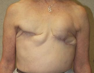 Breasts after traditional mastectomy