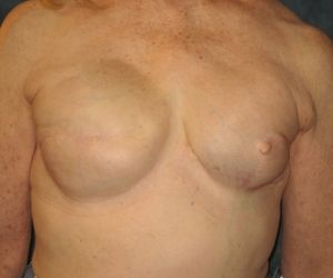 Breasts after treatment