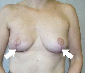 Breasts aftertreatment