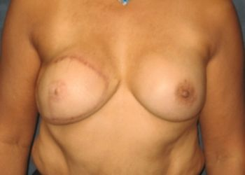 Breasts before treatment