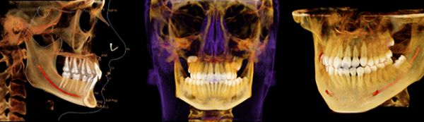 Image of 3-d Oral Scan