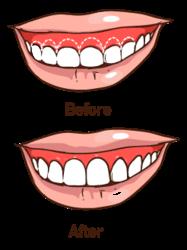 illustration of gummy smlie