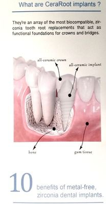An illustration of a dental implant and crown restoration