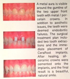 Before and after photos of a patient with dental implants