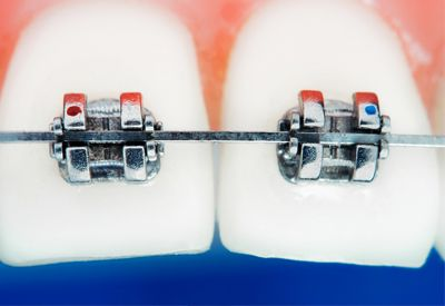 An illustration of teeth with orthodontic braces