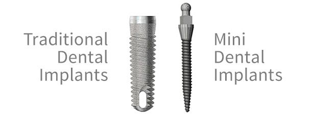 Diagram showing traditional versus mini dental implants