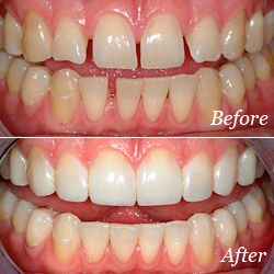 Dental Bonding Before and After Photo
