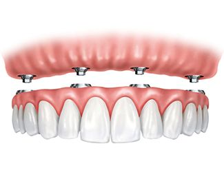 An illustration of dentures attaching to All-on-4® implants