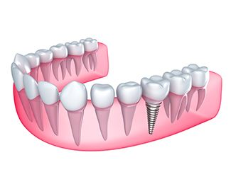 An illustration of an implant-supported crown