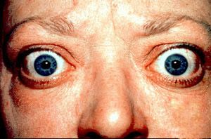 Image of thyroid eye disease