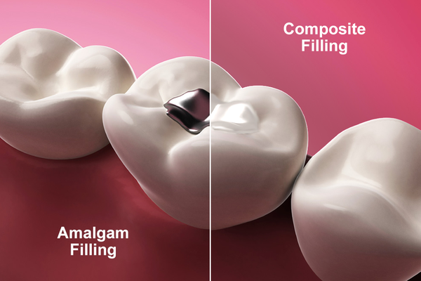 Side by side image of a silver amalgam filling compared to a composite filling
