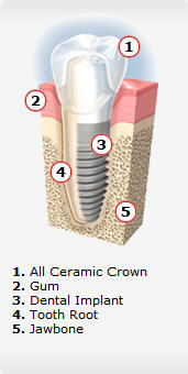 illustration of a dental implant showing all the parts